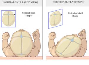plagiocéphalie osteopathie